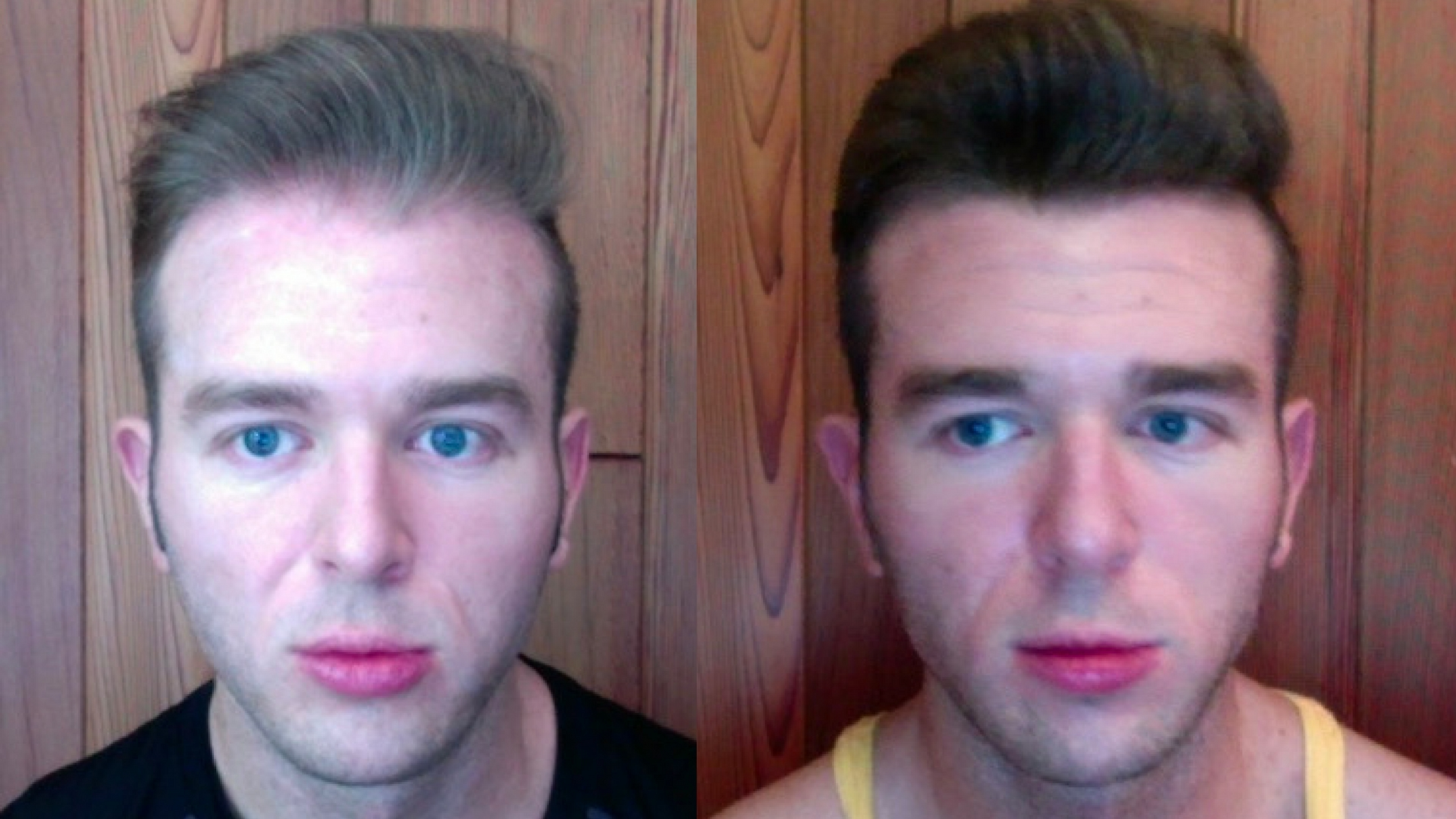 Ru58841 Results With Before And After Pictures Results